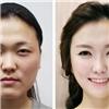 Đây là những hình ảnh đã quá quen thuộc tại  kinh đô phẫu thuật thẩm mỹ  Hàn Quốc