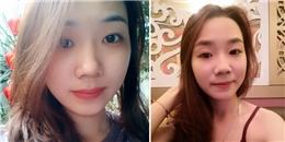 Nữ sinh bị tạt axít ở Sài Gòn viết tâm thư lên mạng xã hội