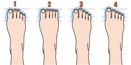 Bạn sẽ bất ngờ về bản thân khi có bàn chân thuộc 10 kiểu này