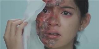 Đứng tim trước gương mặt bị huỷ hoại ghê rợn của Lee  Tình yêu không có lỗi