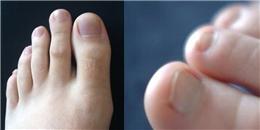 Nhìn ngón chân cũng có thể đoán được tính cách chuẩn không cần chỉnh