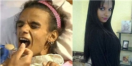 Mẹ trẻ bị tổn thương não sau khi phẫu thuật nâng ngực