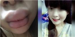 Đôi môi khốn khổ của cô nàng dùng phải son 'rởm'