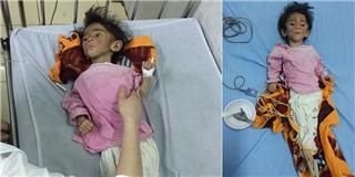 Xót xa bé gái 14 tháng tuổi chỉ nặng 3,5kg vì đói