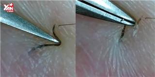 Cận cảnh màn gắp lông ẩn dưới da xem xong nổi  gai ốc