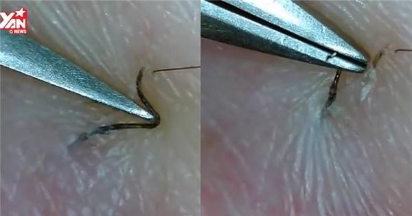 Cận cảnh màn gắp lông ẩn dưới da xem xong nổi 'gai ốc'