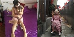 Hậu quả kinh hoàng của cô gái phẫu thuật thẩm mĩ 200 lần