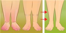 Làm biến mất đôi chân phù với 3 phương pháp siêu hiệu quả này