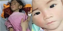 Hình ảnh xinh đẹp bất ngờ của bé gái 14 tháng 3,5kg sau khi hồi phục
