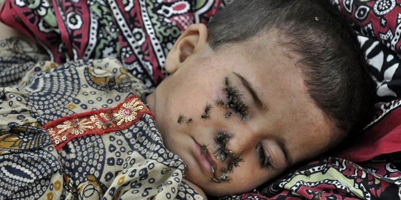 Sự thật thương tâm đằng sau tấm ảnh đứa trẻ 2 tuổi bị ruồi bu kín mặt