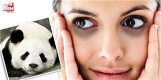 Có thật quầng thâm ở mắt là đặc điểm của người  số khổ ?