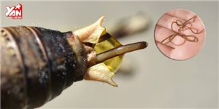 Cảnh báo dân nhậu thích ăn côn trùng