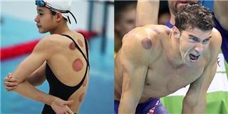 Báo chí thế giới xôn xao vì vận động viên Olympic đồng loạt giác hơi