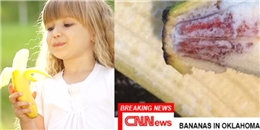 Tin rúng động: 9 trẻ em ở Mỹ nhiễm HIV do... ăn chuối