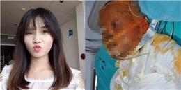 Nữ sinh bị bỏng xăng phải tháo khớp 10 ngón tay, nguy cơ tử vong cao