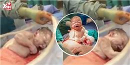 Hồi hộp xem cảnh bé sơ sinh tự chui ra khỏi bụng mẹ