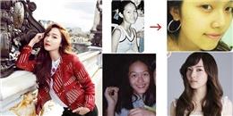 Lộ diện top nghệ sĩ nữ phẫu thuật thẩm mỹ nhiều nhất xứ Hàn