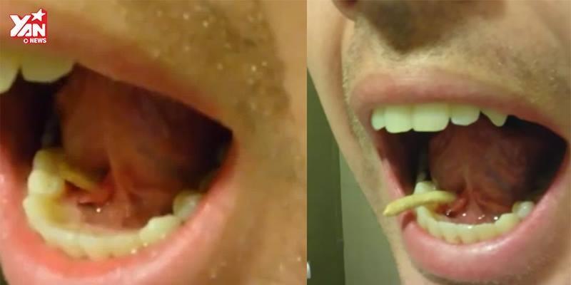 Giật mình với vật thể lạ được rút ra từ miệng chàng trai