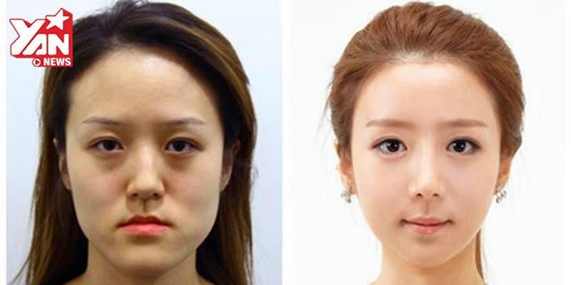 Đây là quá trình phẫu thuật thẩm mỹ Hàn Quốc ít người biết