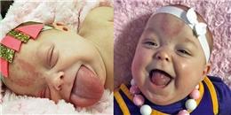 Em bé suýt nghẹn vì chiếc lưỡi khổng lồ đã có thể tươi cười hạnh phúc