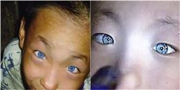 Kì lạ cậu bé có đôi mắt phát sáng và có thể nhìn xuyên bóng đêm