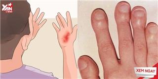 Những dấu hiệu của móng tay nói lên điều gì?