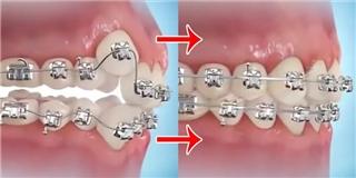 Bạn đã bao giờ biết quá trình niềng răng như thế nào?