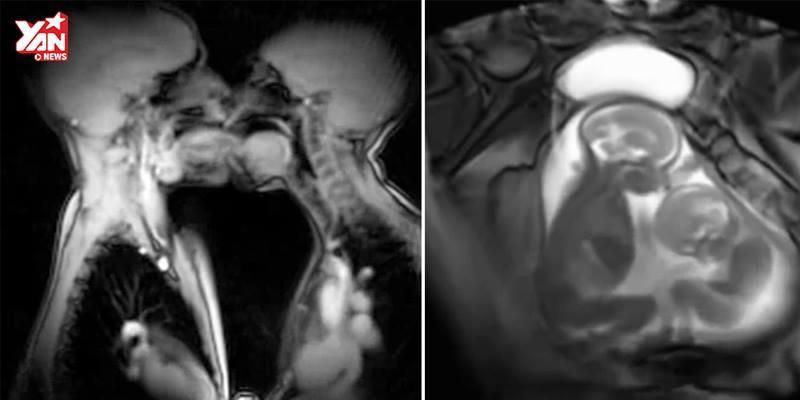 Xem tận mắt bên trong cơ thể người nhờ công nghệ MRI và X-ray