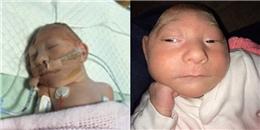 Y học ngã mũ trước nghị lực của bé song sinh có não rơi khỏi hộp sọ