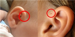 """Chỉ 4% người châu Á sinh ra có """"lỗ tai"""" mà không cần bấm"""