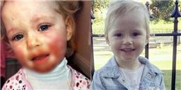 Khuôn mặt cô bé 2 tuổi bị lở loét chỉ vì 1 nụ hôn của người nhà