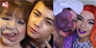 Cảm động chàng trai tìm lại vẻ đẹp cho mẹ bị biến dạng gương mặt