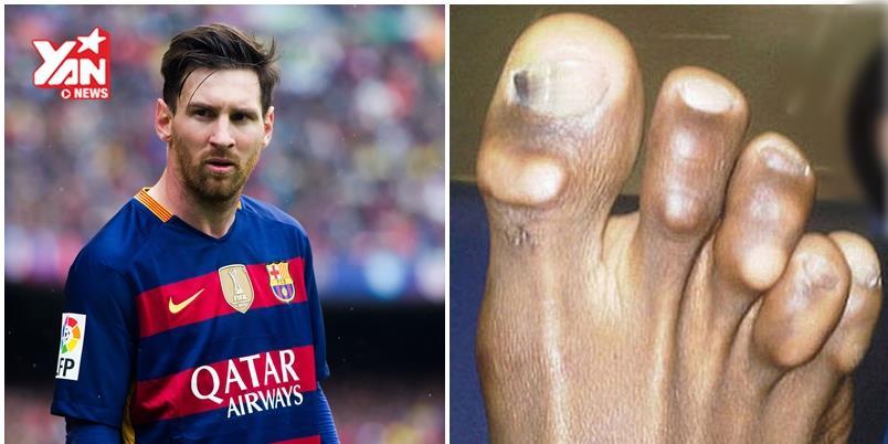 Đây là cái giá phải trả cho sự vinh quang của Ronaldo, Messi...