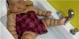 Bất ngờ khi biết bệnh nguy hiểm của em bé bụ bẫm nhiều ngấn gây sốt