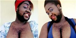 'Đã đen còn lắm lông', cô gái này vẫn được bạn trai yêu hết mực
