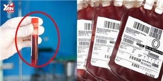Nếu mang nhóm máu O, nhất định phải biết điều này để giữ mạng sống