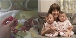 Sự phát triển diệu kì của cặp sơ sinh nhỏ nhất nước Anh