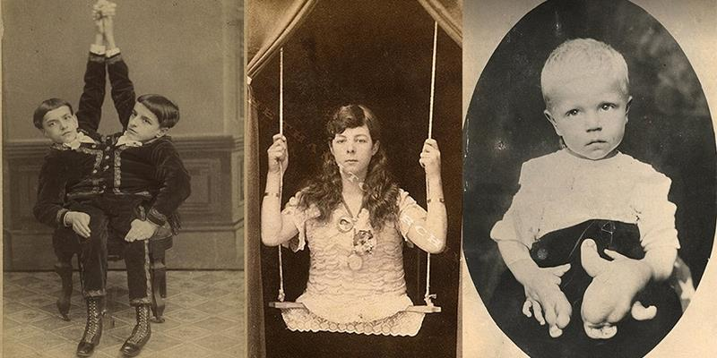 Hãi hùng loạt ảnh thật từng chi tiết từ các show kinh dị thế kỉ 19