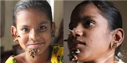 Khuôn mặt biến dạng của cô bé 10 tuổi do mắc bệnh 'người cây' quái ác