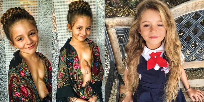 Cô bé mang trái tim ngoài lồng ngực càng lớn càng xinh đẹp