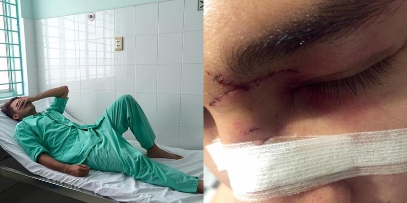 """yan.vn - tin sao, ngôi sao - Nam diễn viên phim """"Bếp hát"""" bị đánh gãy mũi, tét trán"""