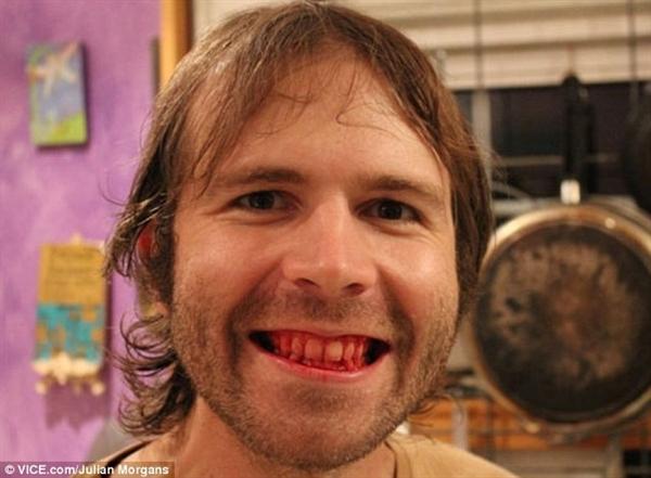 Lạ lùng anh chàng Mỹ ăn thịt sống suốt 5 năm