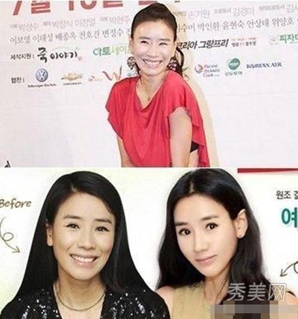 Dao kéo giúp nhiều mỹ nhân Hàn trở nên xinh đẹp hơn.