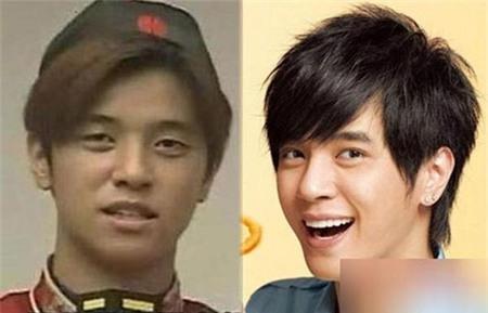"""Từ đôi mắt, gương mặt, cằm, răng và mũi đều được chỉnh sửa. Đây thực sự là một thành công đáng ngưỡng mộ bởi nó đưa tên tuổi của La Chí Tường thành một ngôi sao nổi tiếng và được mệnh danh là """"anh chàng điển trai nhất châu Á""""."""