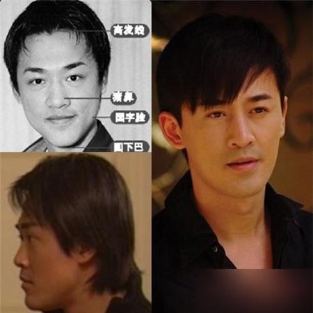 Ngay cả mỹ nam Hong Kong, Lâm Phong cũng nhờ tới dao kéo. Trước đó, Lâm Phong sở hữu chiếc mũi thấp, má hóp, cằm thô. Sau phẫu thuật, anh đã trở thành một Lâm Phong điển trai, đa tình và nổi tiếng nhất nhì xứ Cảng thơm.