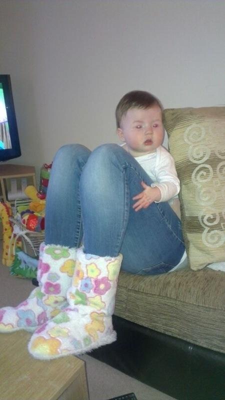 Em bé với cặp chân to quá khổ