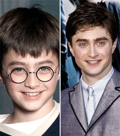 Daniel Radcliffe lúc nhỏ và khi trưởng thành.
