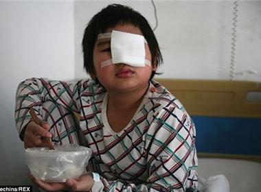 Bé trai bị hỏng mắt vì cô giáo ra lệnh cho bạn tát vào mặt