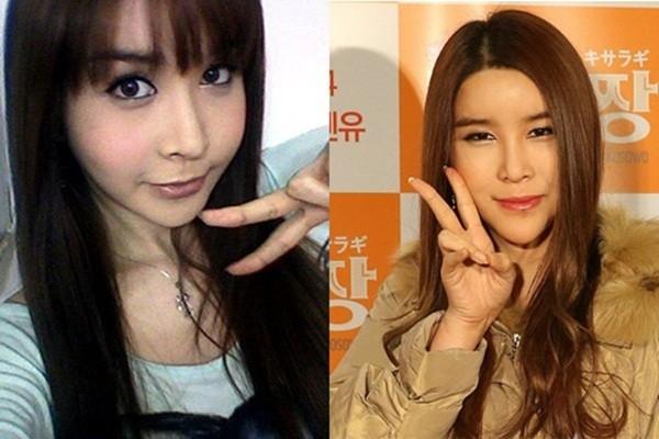 So với trước kia, nữ ca sỹ chuyển giới đẹp nhất xứ Hàn để lộ những dấu hiệu xuống sắc trầm trọng