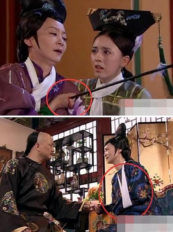 Cũng trong phim Cung tỏa tâm ngọc, cảnh trước Lưu Tuyết Hoa bị thương ở ngực nhưng lại… gãy tay ở cảnh sau.